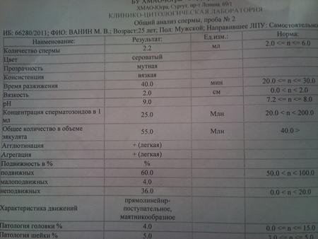 kogda-luchshe-sdavat-spermogrammu
