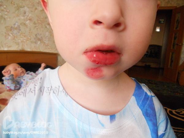 Ребенок расшиб губу что делать