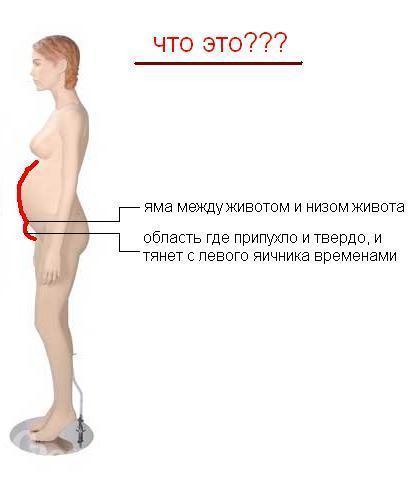 Тянет живот внизу во время беременности