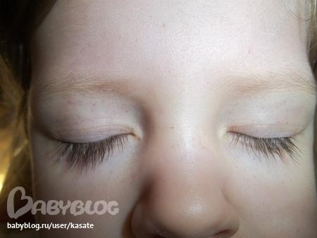 У ребенка раздражение вокруг рта от слюней