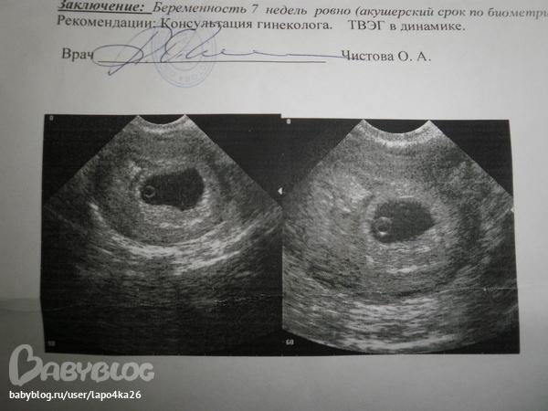 Процесс отслоения плодного яйца происходит только спустя одну-две недели после гибели зародыша.