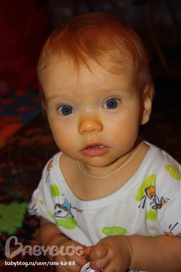 Ребёнок пожелтел на 4 день