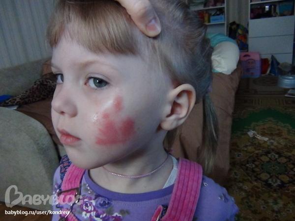 аллергия на молочай комнатный симптомы
