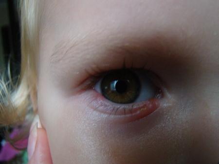 Стрептодермия у детей : фото, как начинается болезнь, чем лечить