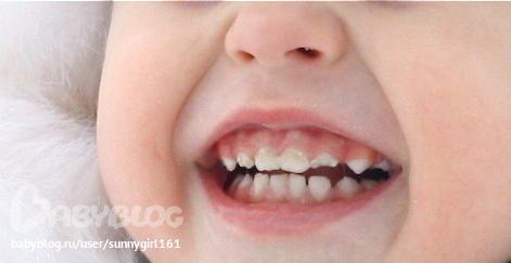 черные пятна на зубах фото что это