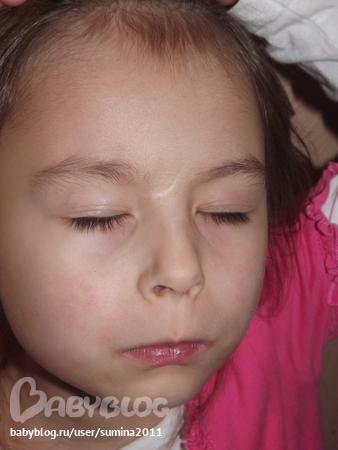 Шрамы, рубцы у ребенка Медицинская консультация
