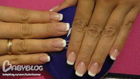 аллергия при наращивании ногтей гелем чем лечить