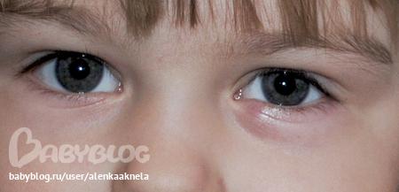 Шишка под глазом у ребенка. Шишка у ребенка. Zdorovyj 99