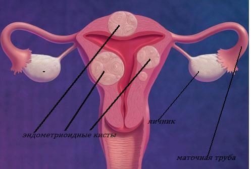 Таблетки противозачаточные при кисте яичника