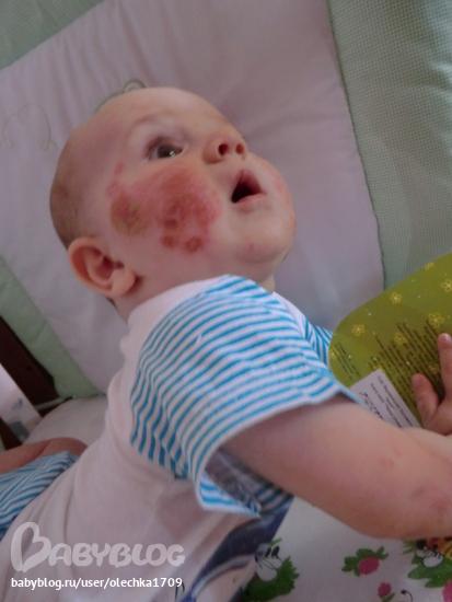 одним кто не делал прививку бцж в роддоме термобелья оптом предлагает