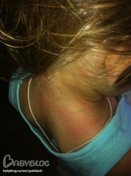 химическая аллергия на руках