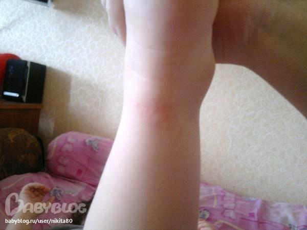 аллергия на блох у человека лечение