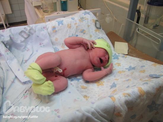 Ребенок после роддома похудел